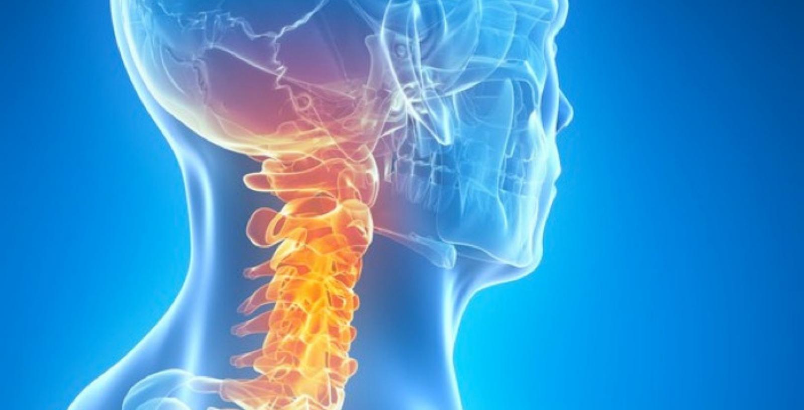 i problemi posturali del collo