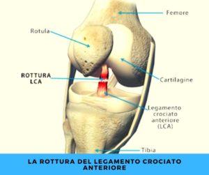 la rottura del legamento crociato anteriore