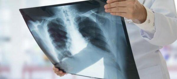 La Radiografia